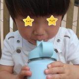 幼児食 アレルギー反応:熱が引いた後の突然のむくみ